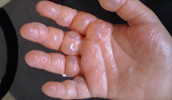 Kaempe-bjoerneklo-er-giftig-forbraending-Phytophotodermatitis-5